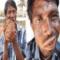 Man addicted to eating bricks and mud